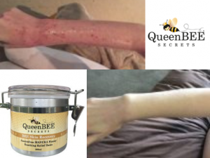 QueenBEE megs-arm-before-after